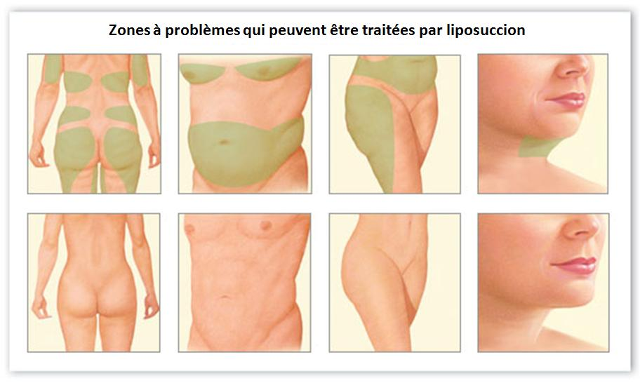 Zones traitées par liposuccion en Tunisie