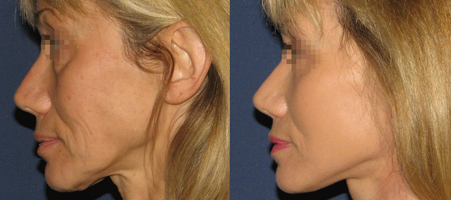 chirurgie esthétique lifting